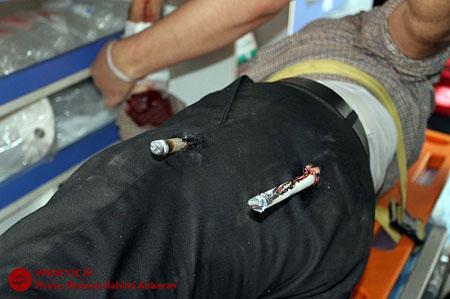 حادثه وحشتناک و دلخراش برای کارگر مشهدی