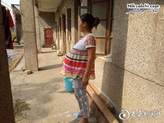 وضعیت عجیب زنی که 17 ماه باردار بود
