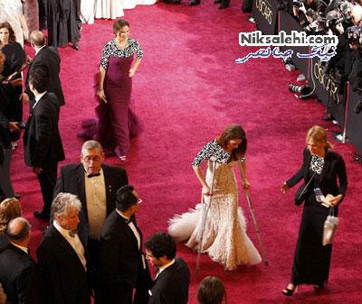 بازیگرخانم مشهور با عصا به مراسم اسکار رفت