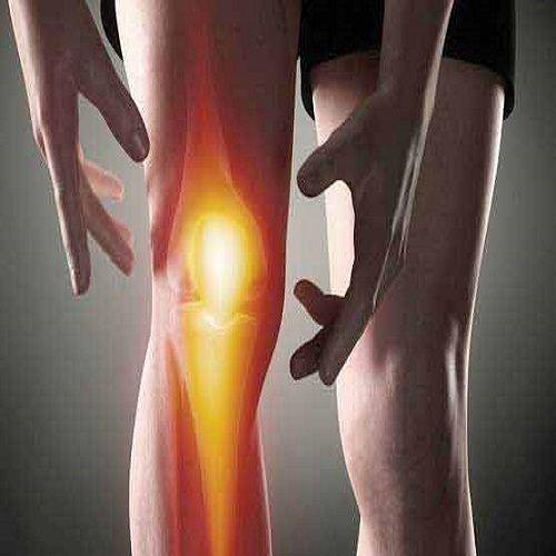 توصیه هایی برای مبتلایان به آرتروز زانو