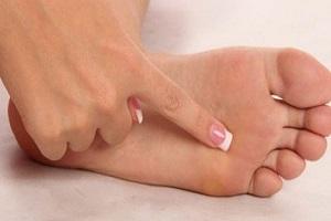 راه های درمان زگیل کف پا