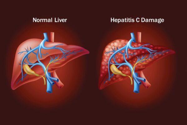 احتمال انتقال هپاتیت سی