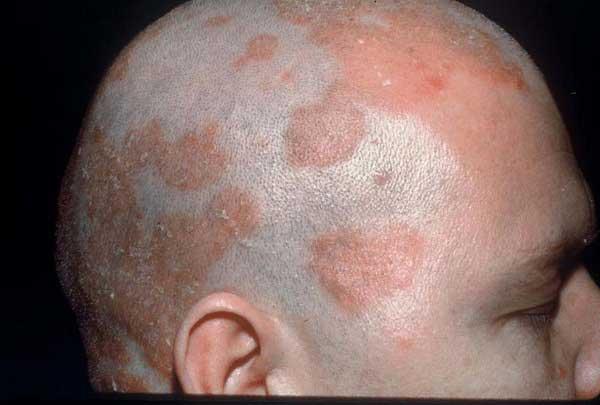 درمان سبوره سر