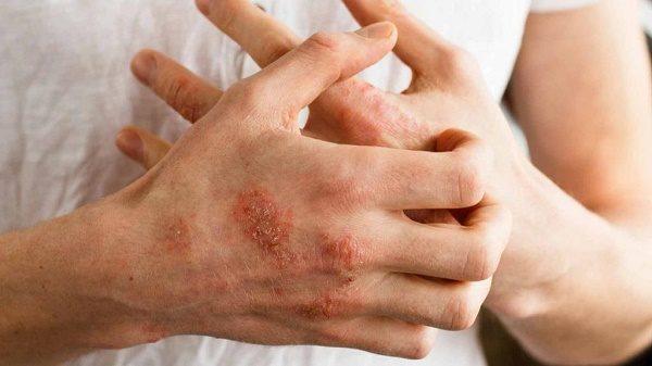 درمان بیماری پوستی اگزما