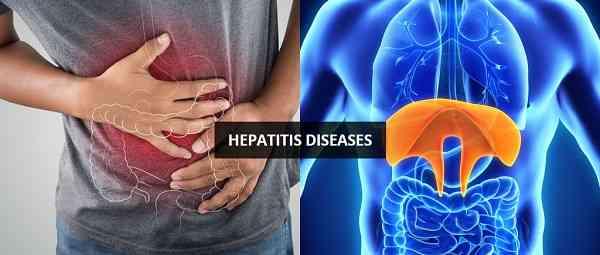 نشانه های هپاتیت