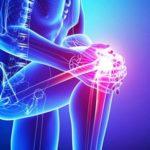 بهترین روش درمان درد زانو و کمر
