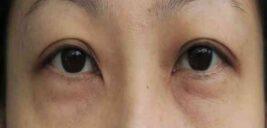 خط افتادن و گودی زیر چشم