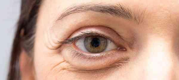 گودی زیر چشم