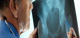 نرمی استخوان و راه درمان ان