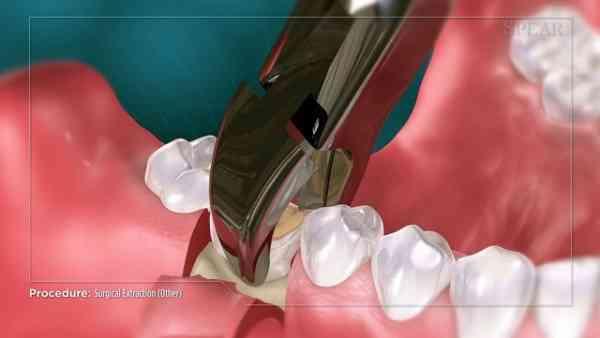 زمان کشیدن دندان عقل