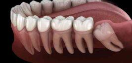 در خصوص دندان عقل و زمان کشیدن آن