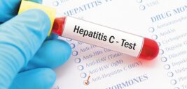 هپاتیت C قابل درمان میباشد و چگونه