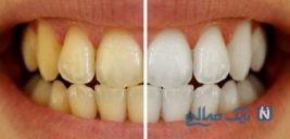 درمان تغییر رنگ دندان ها