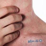 بیماریهای پوستی شایع فصل تابستان
