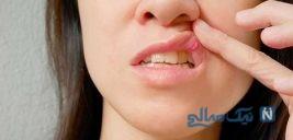 زخمهای سطحی داخل دهان و روی زبان