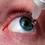 دچار سوزش و خشکی چشم هستم مخصوصا هنگام تماشای تلویزیون