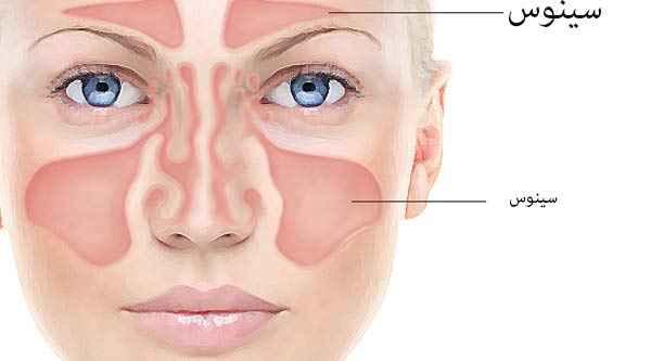 عفونت های سینوزیتی