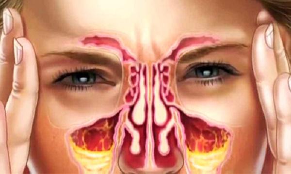سینوزیت و عوارض چشمی