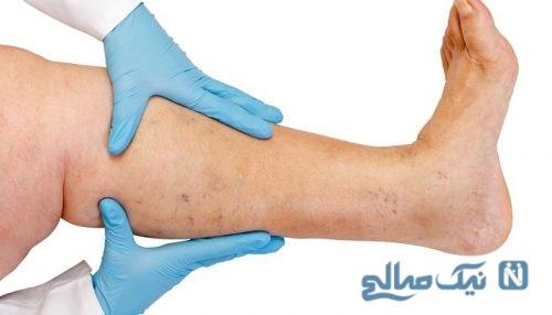 کاهش درد ساق پا