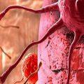 تومورهای خوش خیم تخمدان