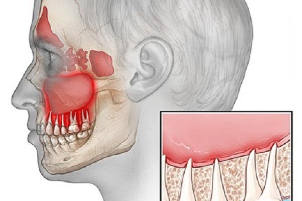 سینوزیت با منشا دندان عفونی