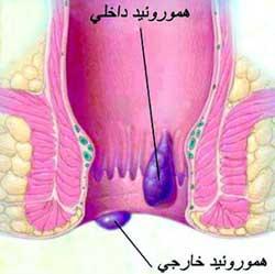 بیماری بواسیر، علت بوجود آمدن ، نشانه های بیماری