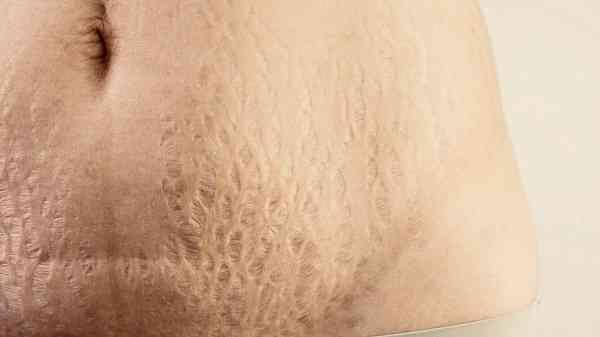 از بین بردن ترک پوستی
