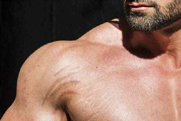 از بین بردن ترکهای پوست که بر اثر چاقی و لاغری ایجاد می شود