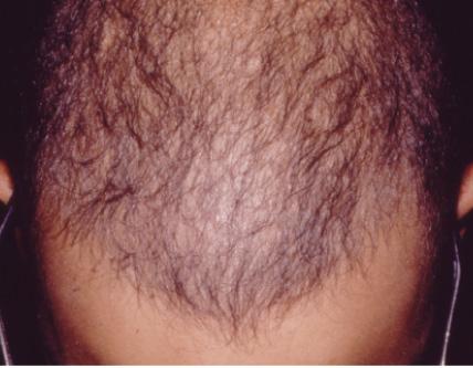 خود ارضایی باعث ریزش مو می شود؟