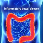 التهاب روده با بیماریهای عصبی ارتباط دارد