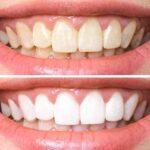 من هر چه مسواک می زنم دندان هایم سفید نمی شود
