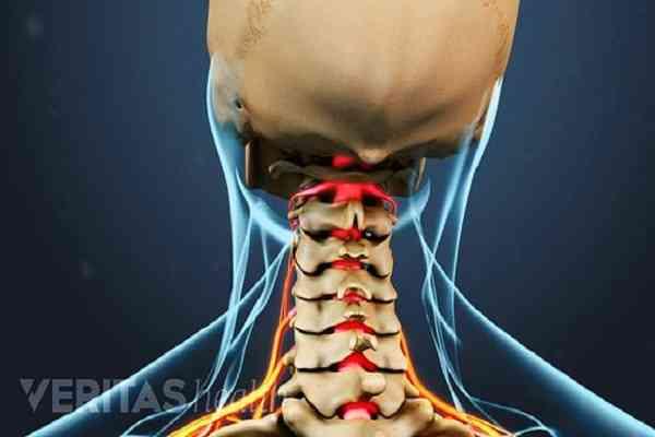 فرق دیسک گردن با آرتوروز گردن چیست؟