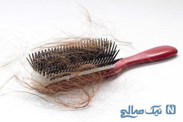 ریزش شدید موی جلوی سر