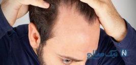 مدتی است در قسمت جلو و روی سر دچار ریزش موی شدید شده ام