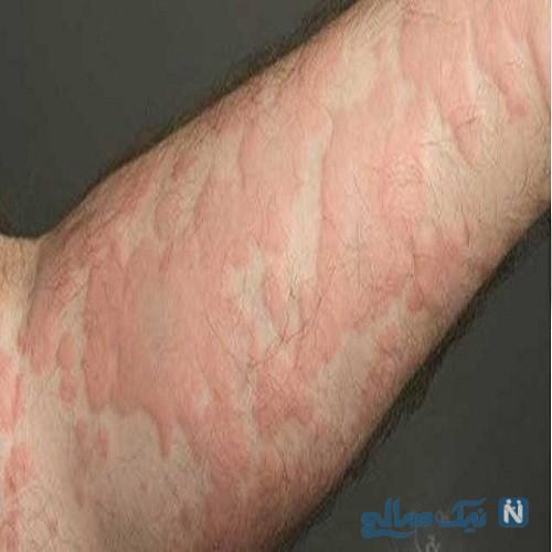زخم معده منجر به بیماری کهیر می شود
