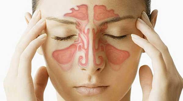 درمان سینوزیت مزمن و عوامل تحریک کننده این بیماری