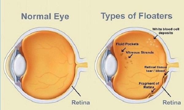 درمان مگس پران چشم