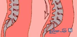 بواسیر و گودی کمر و راههای درمان انها