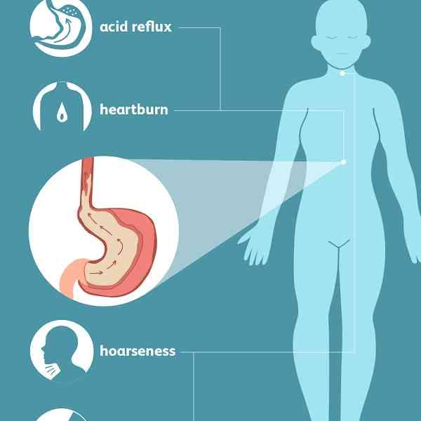 ترش کردن بعد از غذا