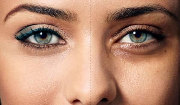تیرگی زیر چشم نشانه چیست