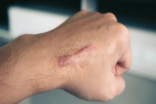 جای سوختگی روی دست نماند چه کار باید کرد؟