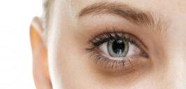 علت گودی زیر چشم از چیست؟و راه درمانش چیست؟