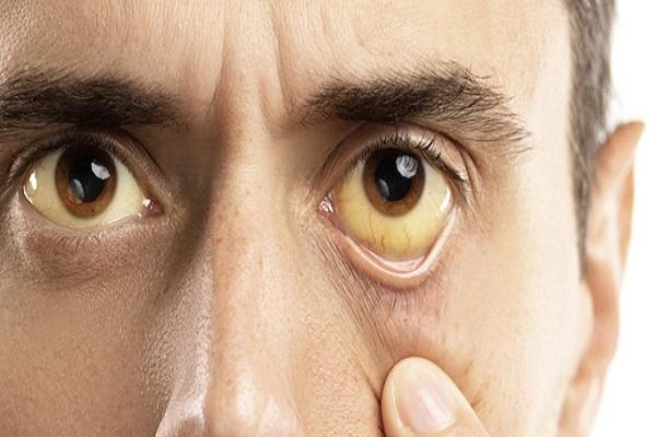 مدتی هست که سفیدی چشمانم به زردی میزند