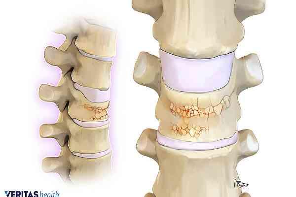 چگونه باید بفهمیم دچار بیماری پوکی استخوان هستیم یا نه