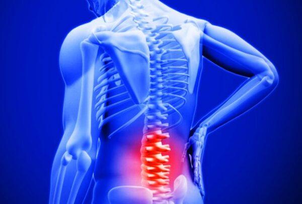 تفاوت دیسک کمر و گرفتگی عضلات