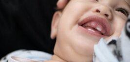 مشکلات کودک در هنگام دندان درآوردن