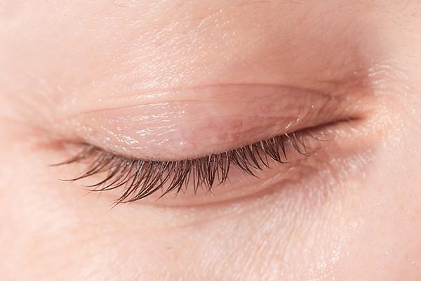 درمان خانگی چروک پلک