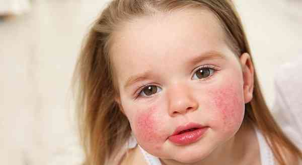 آلرژی به غذا در کودکان