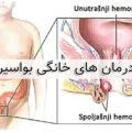 بهترین روش برای درمان بواسیر