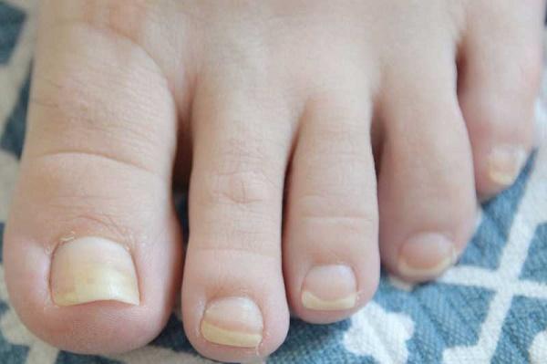 بیماری های مربوط به ناخن پا